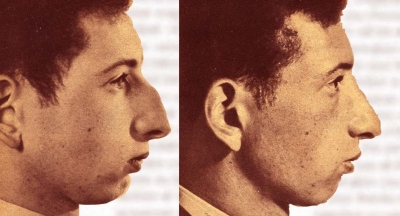 Nose-Bobbing <br />(Click Magazine, 1938)